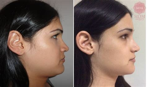 MDM Surgery - Forehead and Orbital Remodeling in FFS