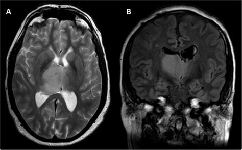 Low grade glioma in an adult patient with Sotos syndrome